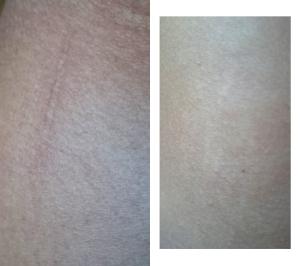 Cicatriz y estría